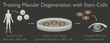 Does Macular Degeneration Always Lead To Blindness Macular Degeneration The Stem Cellar