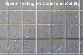 stress pattern sperm adalah sperm testing for male infertility sperm count motility morphology
