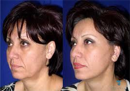 hairstyles that cover face lift scars surgical rhytidectomy facelift mini and laser face lifts