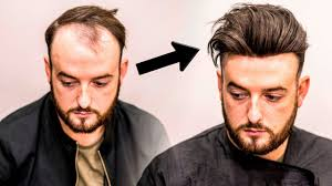 mens hair loss treatment hairstyle transformation does it work