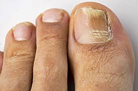 is toenail fungus caused by candida u2013 yellowtoenailscured com