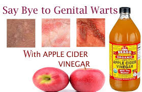 how to use vinegar to get rid of hair dye how to get rid of genital warts fast with apple cider vinegar cured