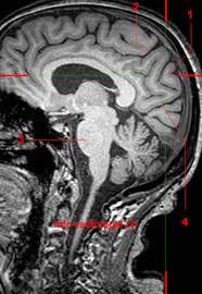 Sagittal Brain Mri Anatomy Parietal Lobe Mri