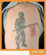 cascade tattoo removal and medical spa portland oregon tattoo