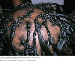 hair styles for trichotellamania chapter 188 traction alopecia and trichotillomania the color