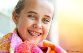 colored braces colors braces oral answers