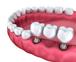 Comfort Dental Greeley Dental Implants Greeley Teeth Implants Tooth Implant