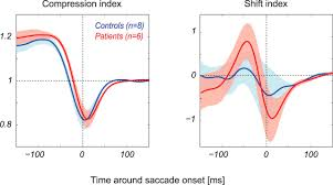 perisaccadic perception of visual space in people with