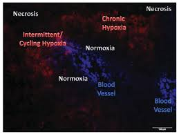 cancers free full text strategies to assess hypoxic hif 1