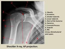 Radiology Anatomy Presentation1 Pptx Radiological Anatomy Of The Shoulder Joint