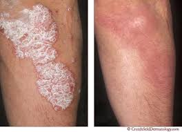 psoriasis treatment psoriasis treatment stop itching crutchfield dermatology