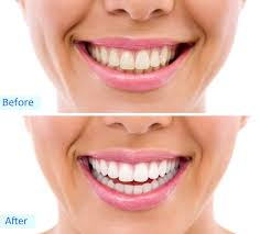 natural teeth whitening florida dental bleaching