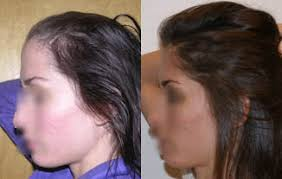 low level light therapy hair laser therapy for hair loss for those who don t want surgery