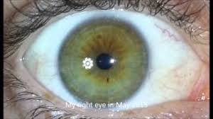can honey change your eye color tube10x com