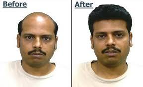 hair bonding hair fixing in noida sector 18 hair fixing clinic in noida sector 18