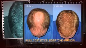 regrow hair scalp med shampoo for hair loss dr ari arumugam