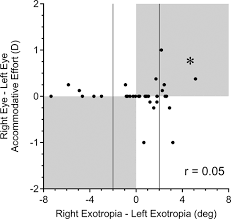 Legal Blindness Diopter Incomitance And Eye Dominance In Intermittent Exotropia Iovs