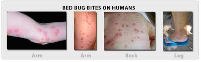bed bugs how to get rid of bed bugs new york nj