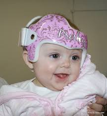 band baby plagiocephaly torticollis doc band baby helmet decoration