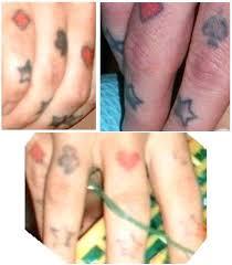 tattoo vanish near me home tattoo removal wedding ideas uxjj me