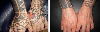 tattoo removal before and after issues and learn how to remove