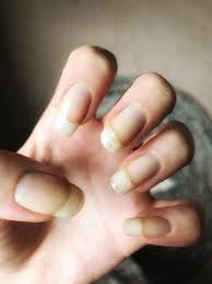 stained nails from nail varnish how to remove u2013 lady mckew
