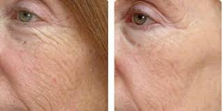 why should you choose the advanced laser u0026 cosmetic center for