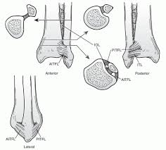 Anterior Distal Tibiofibular Ligament Injuries About The Ankle Musculoskeletal Key