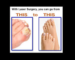 is laser nail fungus removal worth the money sterishoe blog