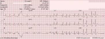 strain pattern ecg meaning pulmonary pressures and ecg patterns ems 12 lead