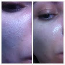 Super Acido Glicolico para fechar poros clarear manchas e tiras olheiras  #FN06