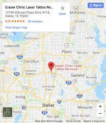 Dallas Area Map Eraser Clinic Laser Tattoo Removal Dallas Tx