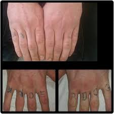 laser tattoo removal cheltenham forever clinic cheltenham