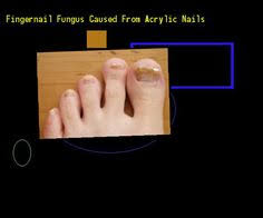 pictures of nail fungus under acrylic nails nail fungus remedy