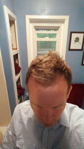 how i thickened my hair and advanced my hairline with a simple