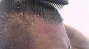 Tea Tree Oil Hair Loss The Truth About Your Itchy Scalp And Hair Loss 5 Big Causes