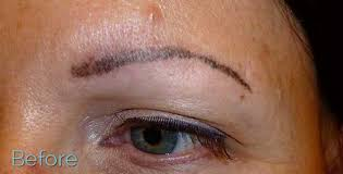 do you offer eyebrow tattoo removal