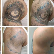 wrecking ball tattoo removal tattoo collections