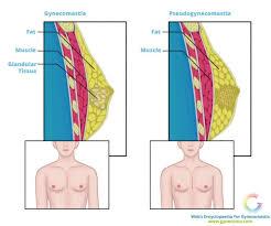 pseudogynecomastia causes diagnosis u0026 treatment options