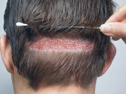 prescreened hair transplant physicians is doing 8000 grafts with follicular unit extraction fue