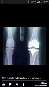 Xray Meme - bad knee xray 17 funny pics memes health pinterest funny