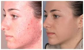 neutrogena light therapy acne mask before and after 15 shocking microdermabrasion before and after pictures