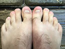 how to get rid of toenail fungus here are 12 effective remedies