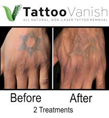 tattoo vanish healing before and after tattoo removal get the best results the all