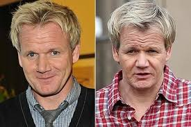 hair uk gordon ramsay and other who ve had hair transplants