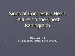 signs of congestive failure on the chest radiograph molly