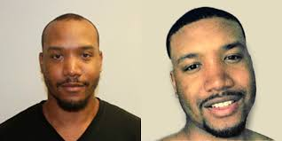 african american hair transplant african american hair transplants are no different dr brett