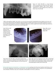 Dog Tooth Anatomy Scil Animal Care Company Scilful Vet Solutions Newsletter