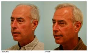 hair plugs for men male hair transplant dallas male pattern baldness treatment plano tx