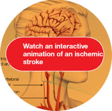 Can Stroke Cause Blindness How High Blood Pressure Can Lead To Stroke
